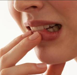 9 Obat Alami untuk Atasi Bibir Pecah-pecah