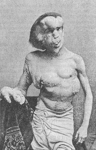The Elephant Man Joseph Merrick