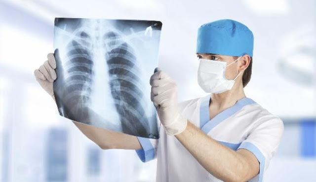Bagi perokok Pasif dan aktif ini adalah salah satu cara Bersih-bersih Paru paru yang alami..