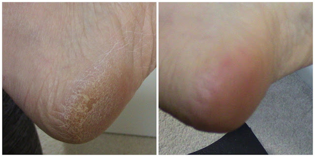Emjoi Micro-Pedi Nano Pro-before-after