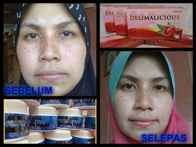 TESTIMONI COLLAGEN DELIMALICIOUS WHITE