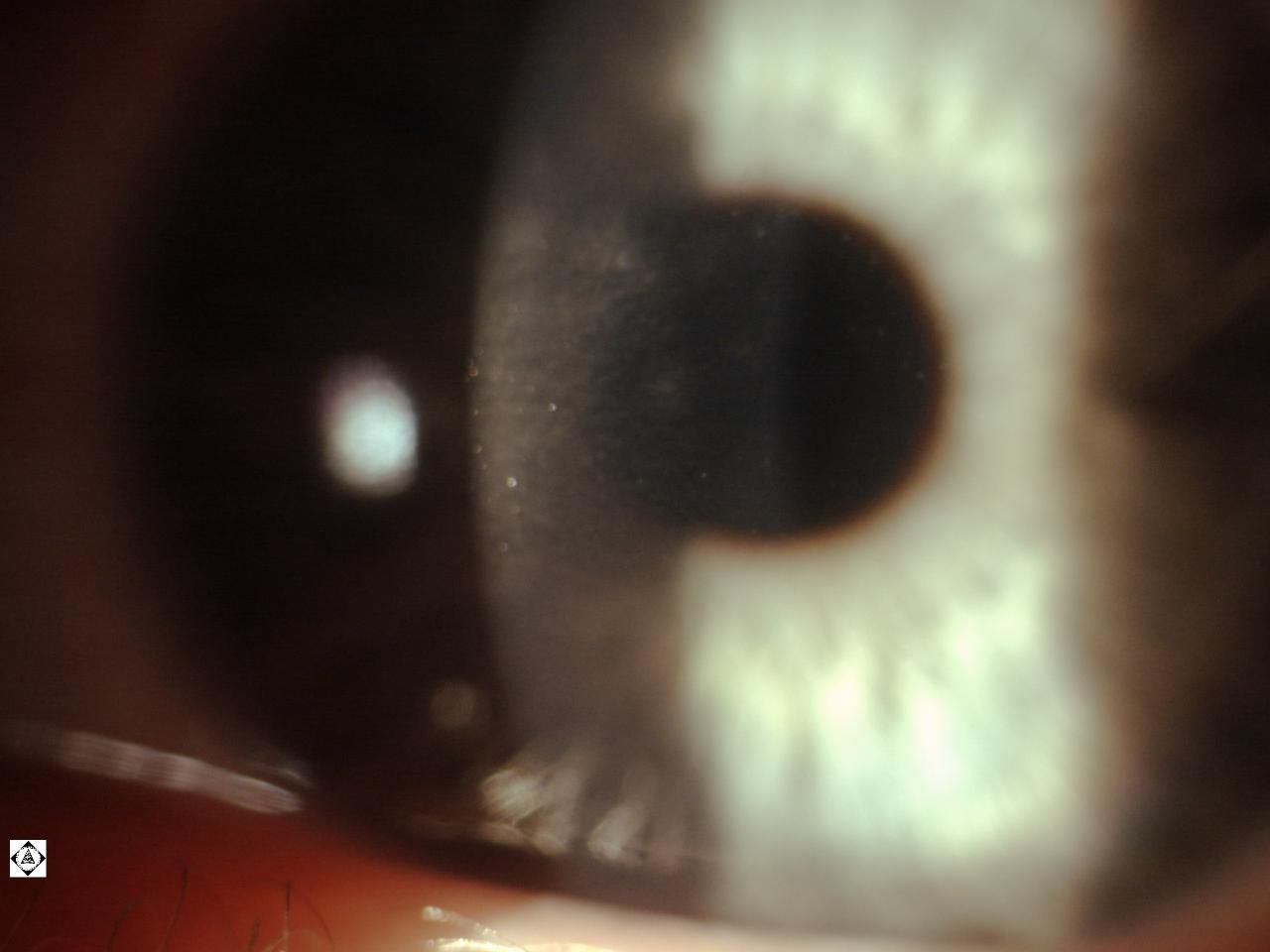 CORNEAL SUBEPITHELIAL INFILTRATE FROM VIRAL INFECTION