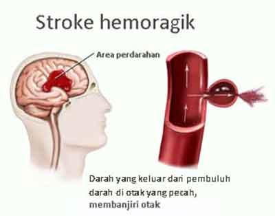 http://endofmaumoon.blogspot.com/2016/01/pengobatan-stroke-hemoragik.html