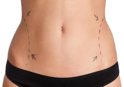 How to Tighten Stomach Skin