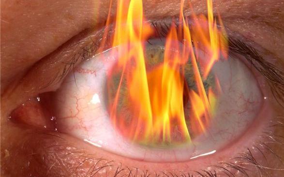 Burning Eyes Causes Of Burning Eyes Medimiss