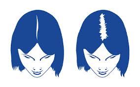 Retete naturiste impotriva alopeciei difuze (temporare)