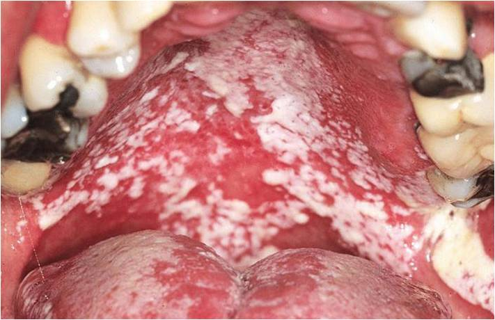oral candidiasis caused by inhalation steroids