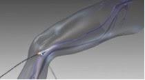 Cirurgia para varizes com radiofreqüência pode ser uma alternativa!
