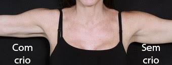 Antes e depois de criolipólise nos braços
