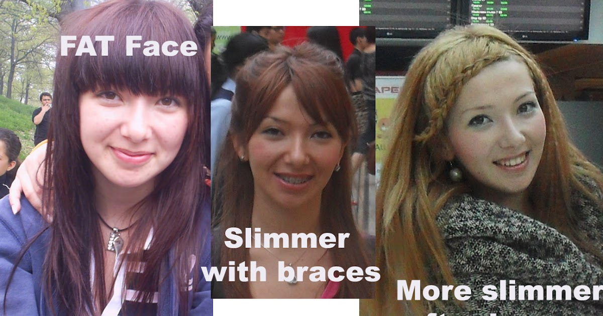Braces change face shape