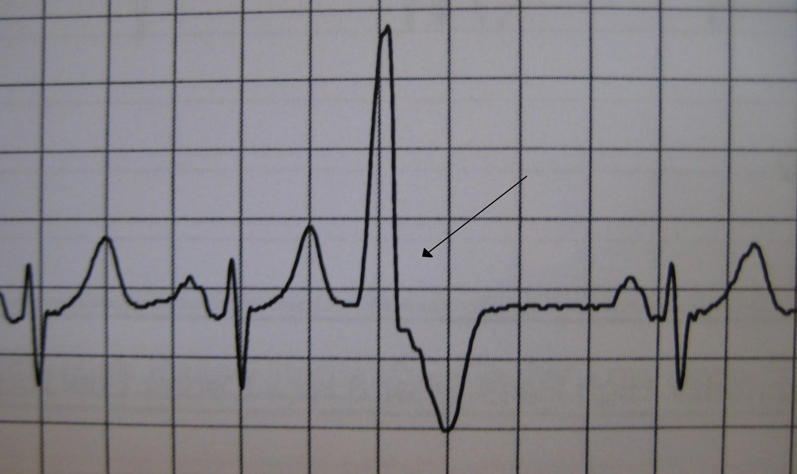 FIREFIGHTER/PARAMEDIC STORIES: Heart Rhythms, Part 5 ...
