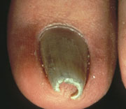 Pincer Nail Cure http://www.walkinmyeyeshadow.com/2011/08/nail-know-how-nail-diseases-and.html