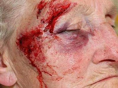 Κτήνη βασάνισαν και σκότωσαν ηλικιωμένη για 300 ευρώ στο Χαλάνδρι