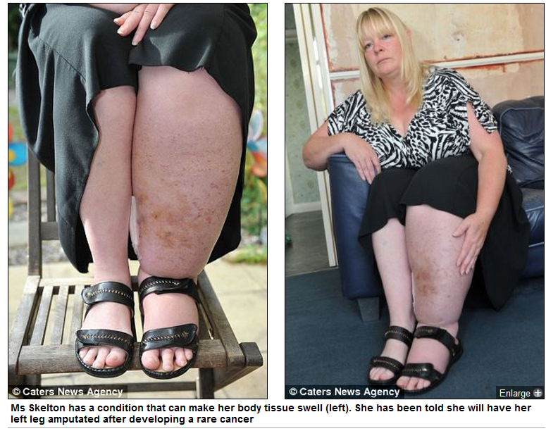 Woman with Amputated Leg