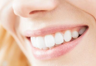 مواد طبيعية لتجعلين أسنانك ناصعة البياض