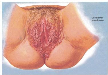 Anal Herpes Fotos Bilder
