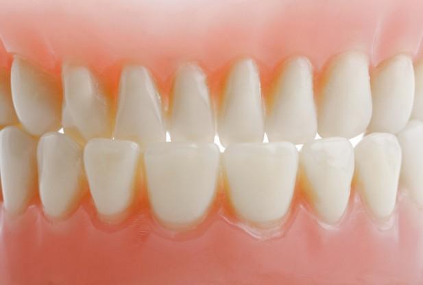 Cara Alammi Mengobati Sakit Gigi Berlubang dan Gusi Bengkak