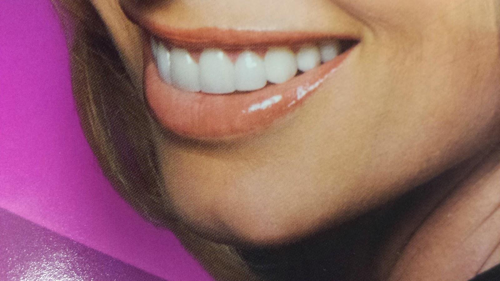 white teeth Bellevue cosmetic dentist