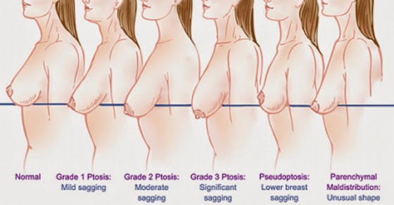 5 Common Habits That Cause Sagging Breasts
