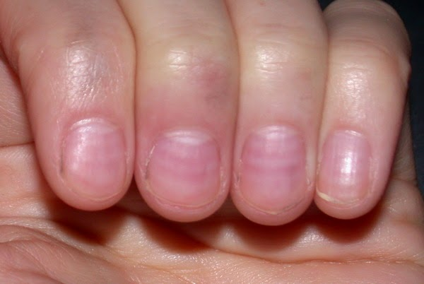 Did You Know That Over Half All People Bite Their Nails So If Many Do It Can T Be Bad Right Wrong P Eople Who Nail