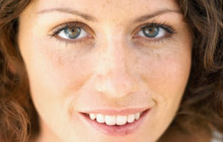 La corteza la crema que clarifica de las pecas y las manchas de pigmento