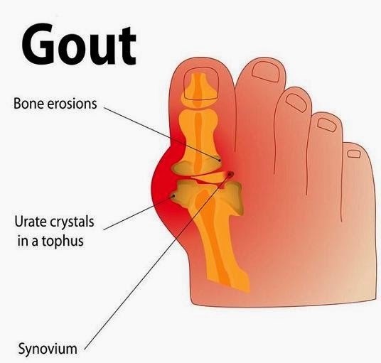 natural gout pills ankle with gout gout symptoms foot arch