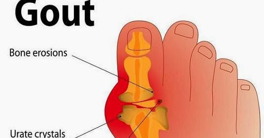 medication for toe gout list of food good for uric acid patient uric acid role in human body