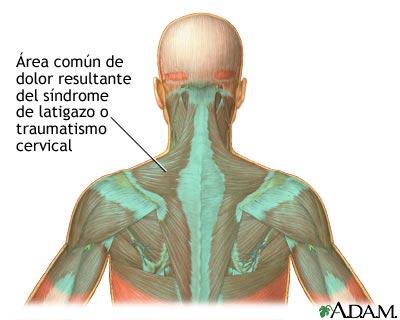 Los síntomas difundido por la osteocondrosis