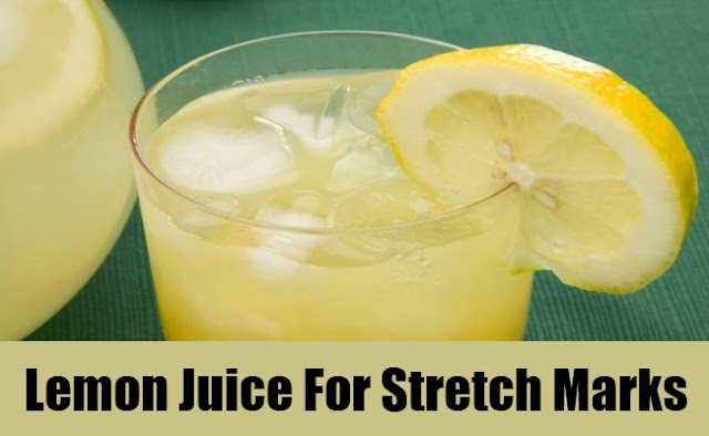Lemon Juice for Stretch marks