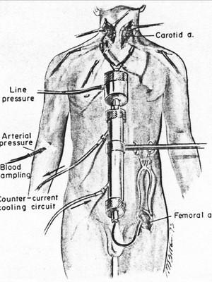 Um diagrama da técnica usada por White na década de 1970. O macaco que teve a cabeça transplantada sobreviveu por oito dias (Foto: reprodução)