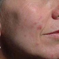 acne tardiva nei soggetti adulti