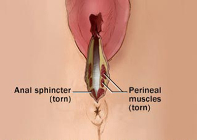 Pussy muscles that can rupture penis