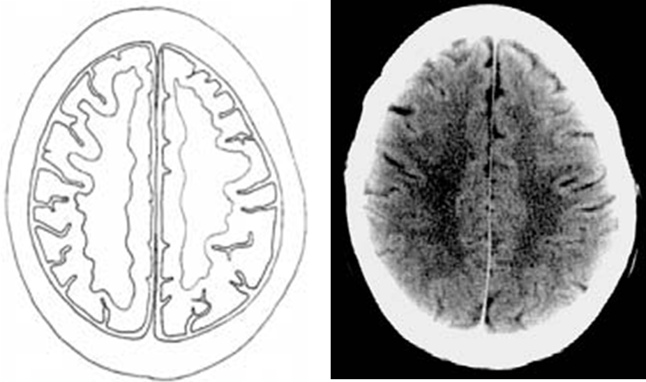 10. Intracranial vessels - No abnormal dilatation, No vascular -4.bp.blogspot.com