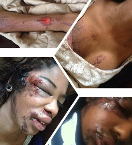 boyfriend beats girlfriend badly www.chiomaandy.com