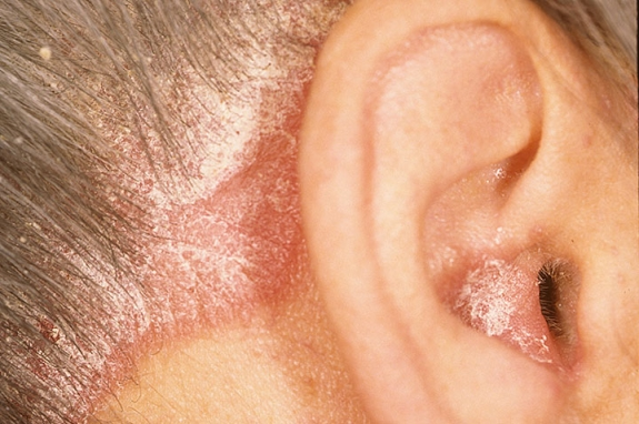 Ear Psoriasis information including symptoms, diagnosis, misdiagnosis, treatment, causes, patient stories, videos, forums, prevention, and prognosis 2