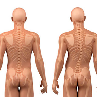 Nursing Diagnosis and Intervention for Scoliosis