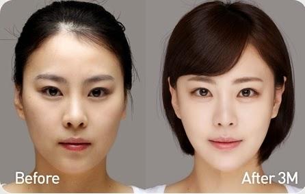 Foto sebelum dan sesudah koreksi tulang wajah-3