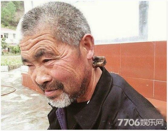 Tanduk Misteri Tumbuh Pada Leher Lelaki Dari China