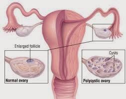 Cyst Disease Symptoms In Women