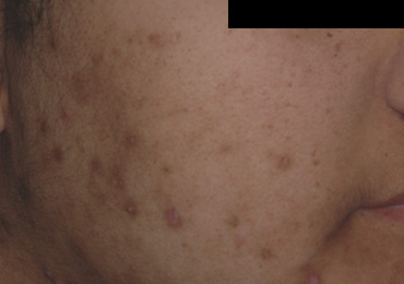 Manchas Oscuras en la piel - Instituto de Fotomedicina