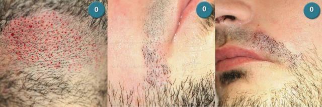 zamzam hair oil | minyak mbr | minyak kemiri | penumbuh