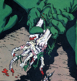 Aquaman mangled hand eaten to the bone