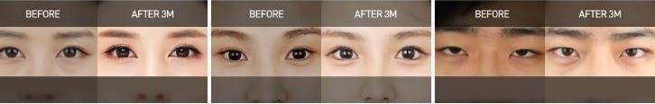 Sebelum dan sesudah operasi plastik mata di Wonjin