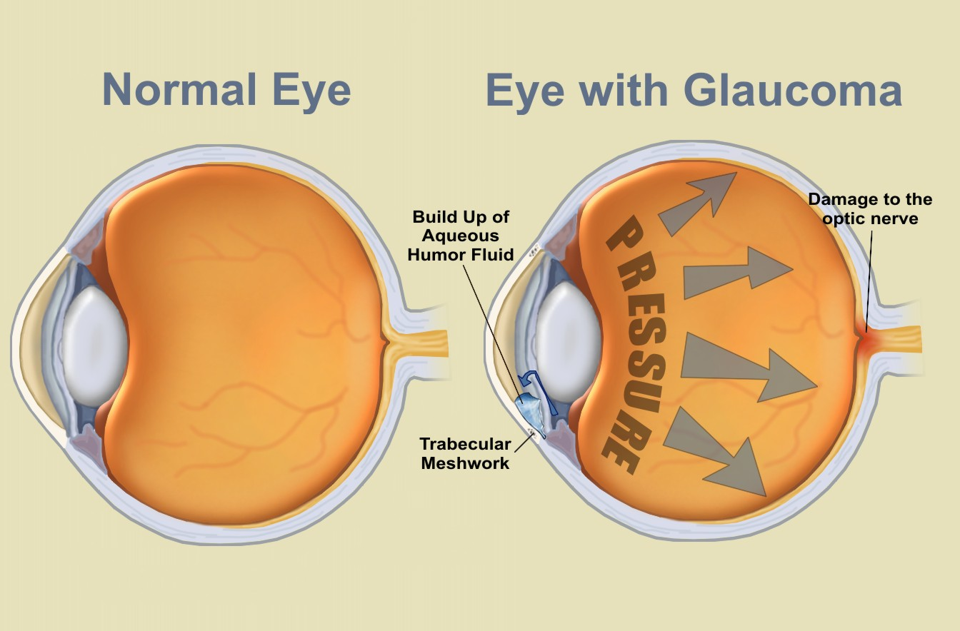 VISIQUE KAPITI EYECARE: July is Glaucoma Awareness Month