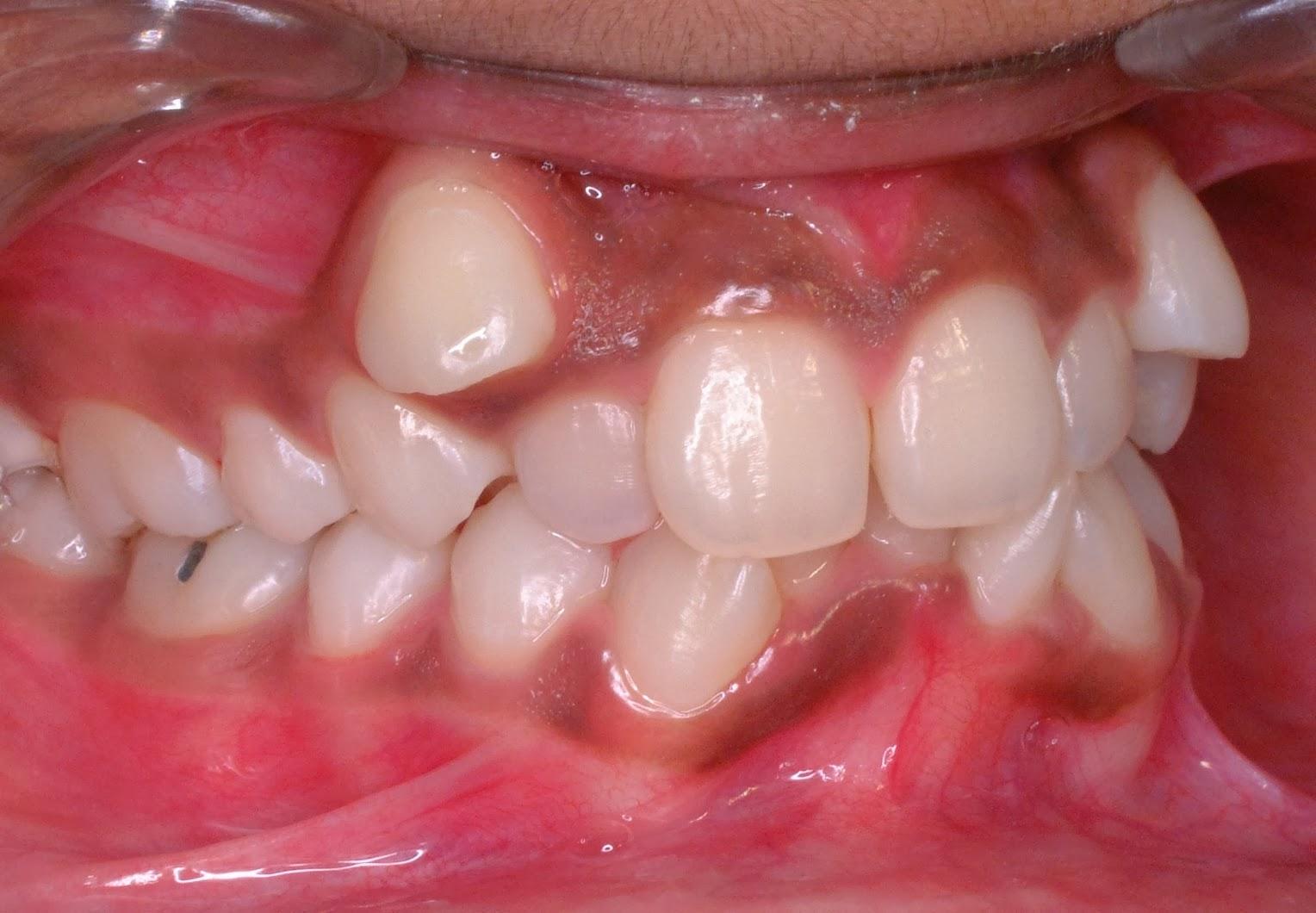 Член в зубах фото 11 фотография
