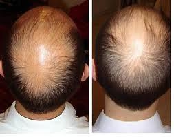 Ramuan Tradisional Menyuburkan Kepala Botak