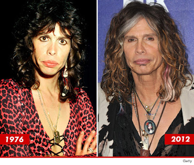 Steven Tyler Before and After