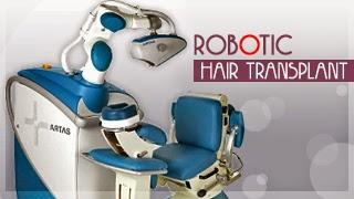 Robotic Hair Transplant