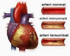 obat herbal jantung