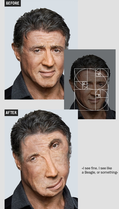 04-Sylvester-Sly-Stallone-Igor-Kochmala-Plastic-Surgery-using-the Fibonacci-Sequence-www
